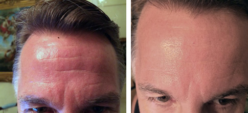 Jim Winkler's Before and After.